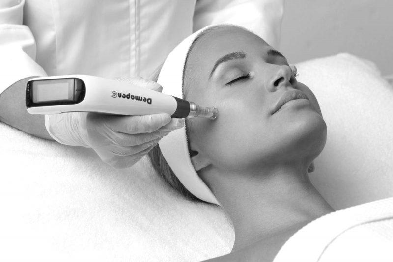 skin-needling-dermapen